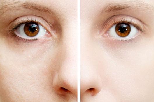 manchas pele1 123111104022812 - Ácidos Que Clareiam a Pele