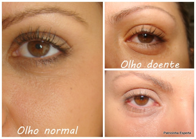Patricinha Esperta5 - Quando a Maquiagem Causa Inflamação Nos Olhos...