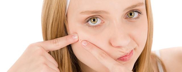 acne solar - Acne Solar