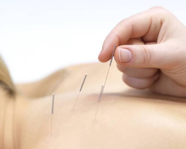 acupuntura SN - Acupuntura Serve Para Quê?