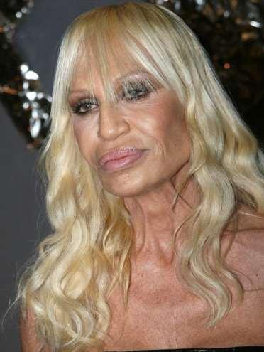 Donatella Versace 02 - Preenchimento Labial: Elas Fazem!