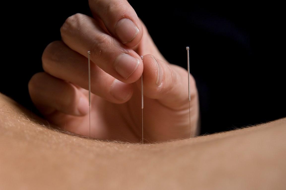 Paul Blacker acupuncture treatments