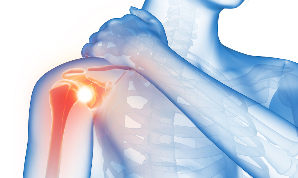 Paul Blacker acupuncture for frozen shoulder
