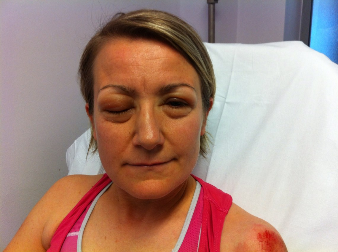 ... » Anaphylaxis – be aware of symptoms and Emergency Treatment