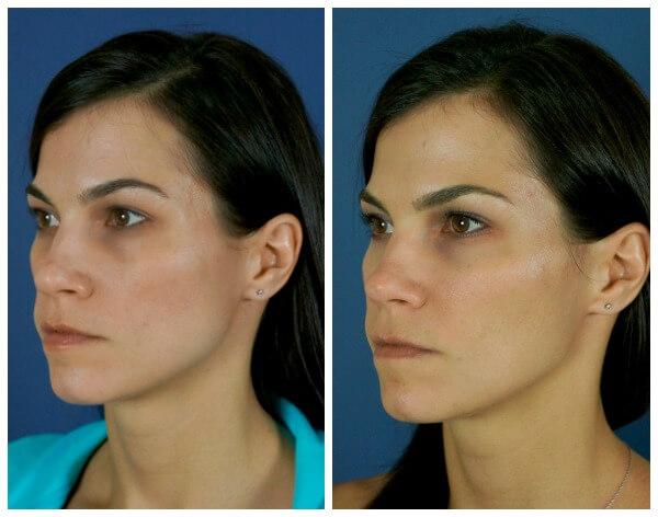 Botox for Jaw Clenching at Carolina Facial Plastics