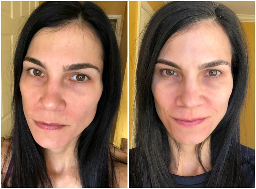 before and after skincare