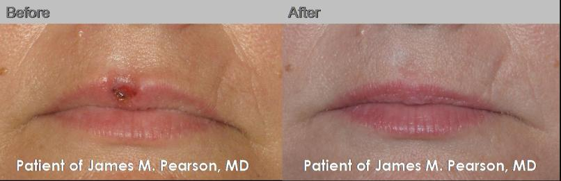 Skin Cancer Lips Pictures | Lipstutorial org