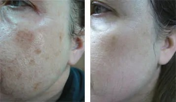 Large Pores Treatment Montreal Dermatologist