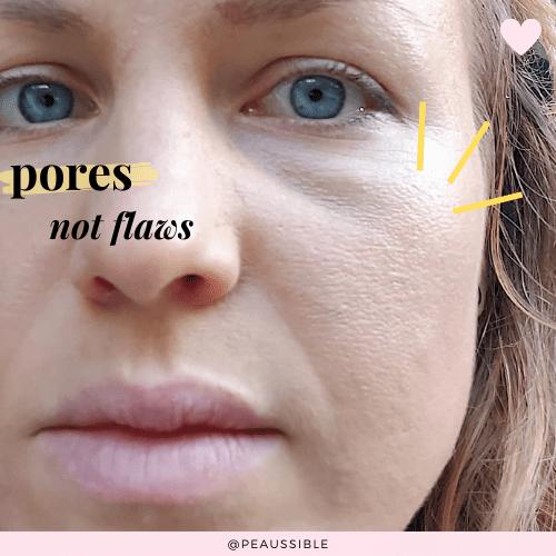 Pores not flaws. Les pores sont normaux !