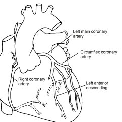 Coronary Arteries Diagram Branches Bennett Trim Tab Pump Normal Pediatric Heart Specialists
