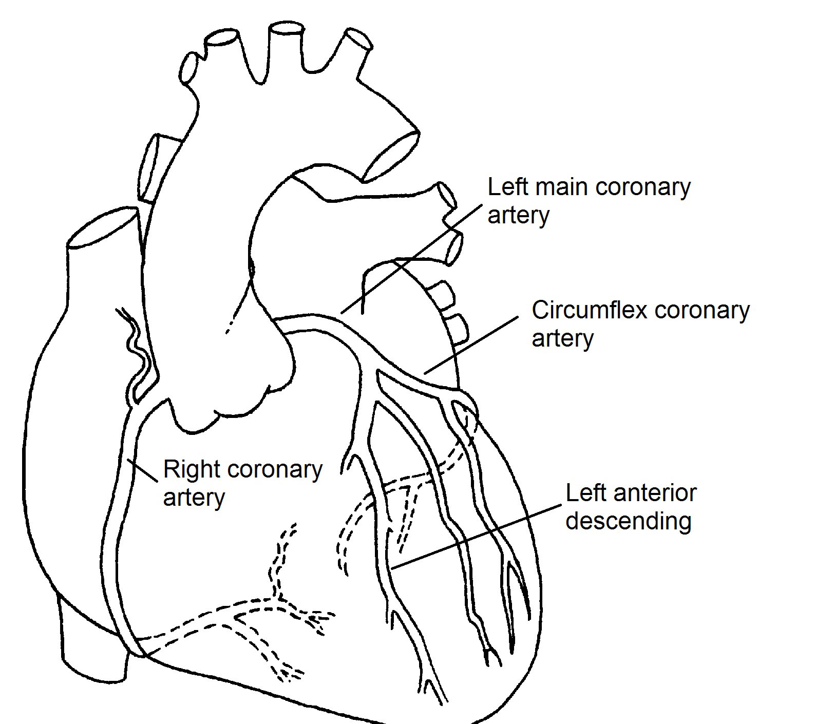 coronary arteries diagram branches 1993 honda accord wiring radio normal pediatric heart specialists