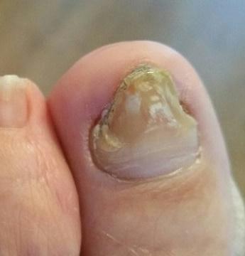 De nagel voor de behandeling.
