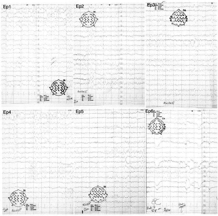 Subclinical rhythmic EEG discharge of adults: SREDA in two
