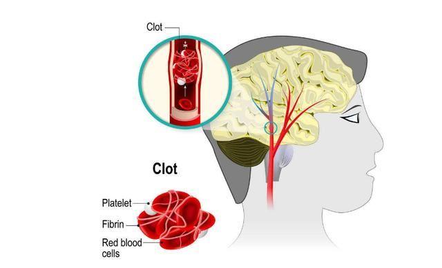 腦血管堵塞。下一步就是腦梗!每天來一點。清梗換血很簡單 - JUSTYOU