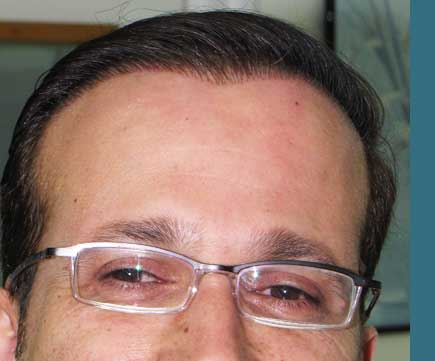 fue hair transplant artificial hair implant exoderm i m c