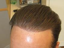 biofibre nido artificial hair implant