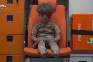 Five-year-old Omran Daqneesh