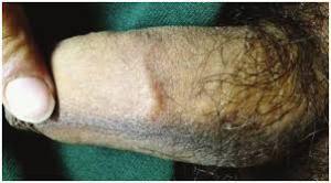 atypical penile mondor's disease