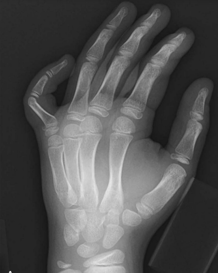 Extra Octave fracture