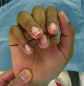 Rotational deformity