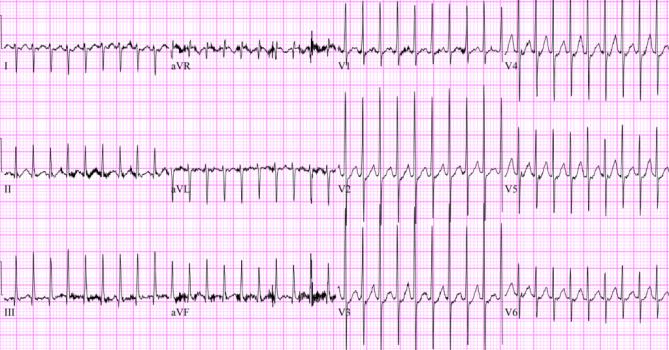 The EKG shows a narrow, regular complex tachycardia consistent with SVT