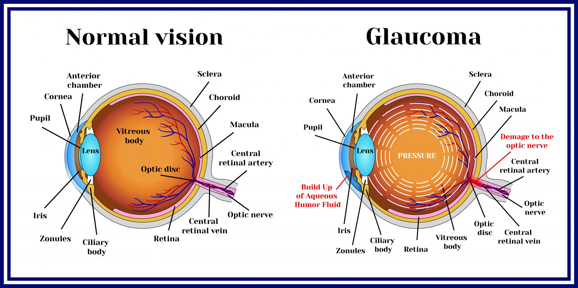 The Effectiveness of PEMF Therapy for Glaucoma  PEMF
