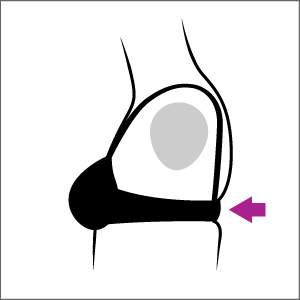 Bra Fit Problems and Solutions