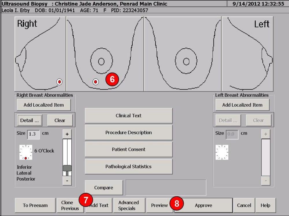 medium resolution of pentips 117 version 5 9 additions to biopsies