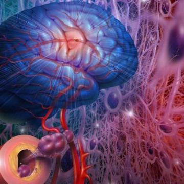 Aneurizma mozga – može li se odreagovati pre nego što je prekasno?