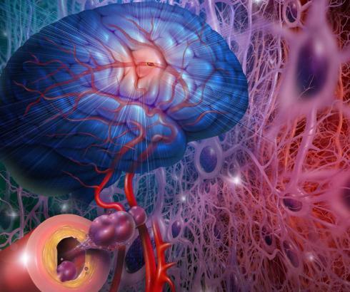 Ultrazvukom protiv Alchajmera?