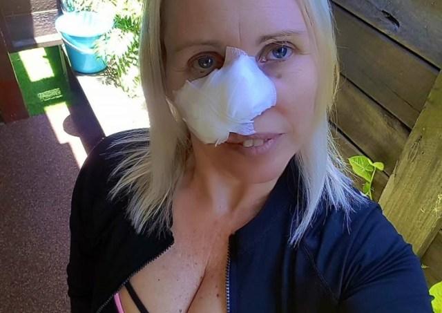femeie cu bandaj pe fata