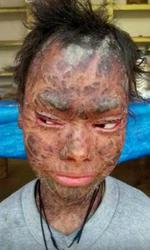 O tânără trece prin probleme grave cu pielea sa