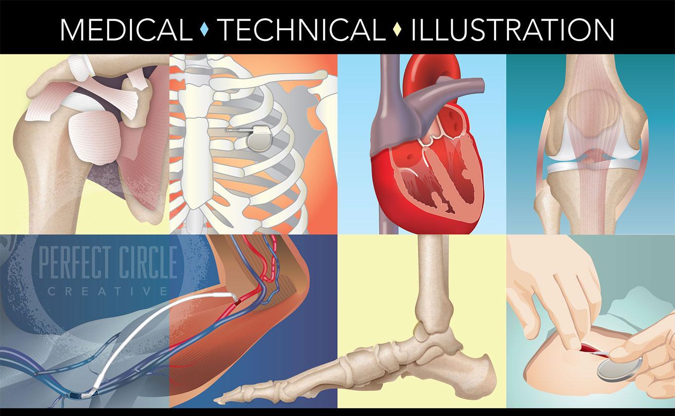 hight resolution of medical illustration