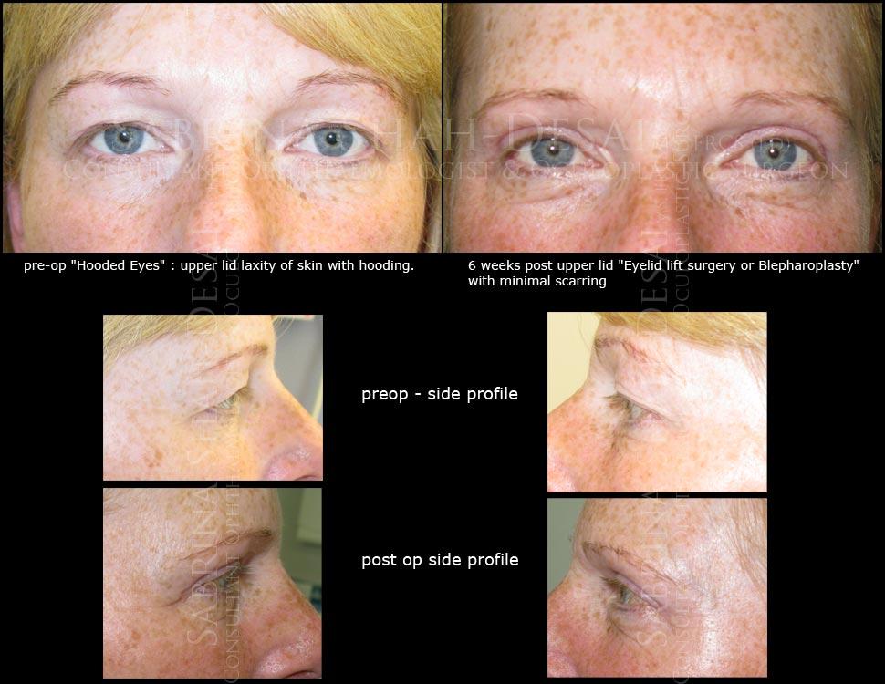 Case Study : Surgery for hooded eyelids (blepharoplasty ...
