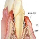 高松市の歯周病治療|虫歯菌と歯周病菌は違います