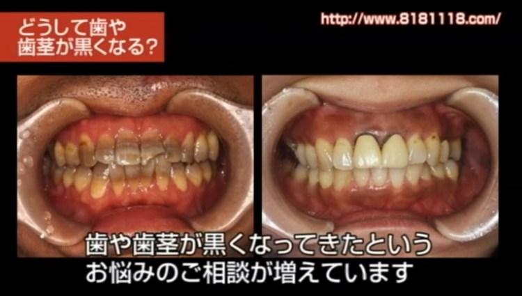 歯が黒くなる原因