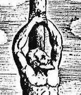 Τι έδειξε η «νεκροψία» για τον θάνατο του Ιησού Χριστού – Μια εκπληκτική ανάλυση από τον ιατροδικαστή Φίλιππο Κουτσάφτη