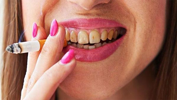 Dentes amarelos por causa do cigarro