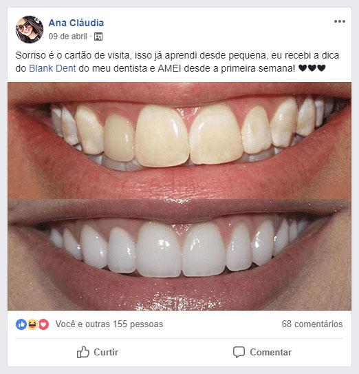 Blank Dent - Depoimento da Ana Claudia