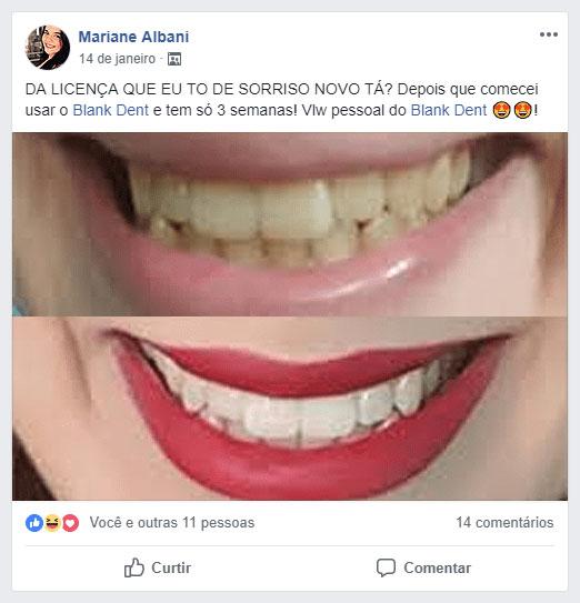 Depoimento Blank Dent - Mariane