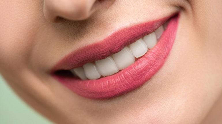 Dentes alinhados e brancos