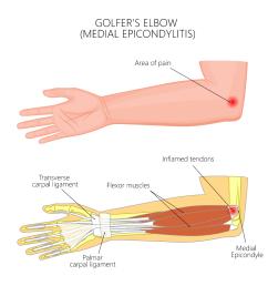 golfer s elbow [ 1200 x 1200 Pixel ]