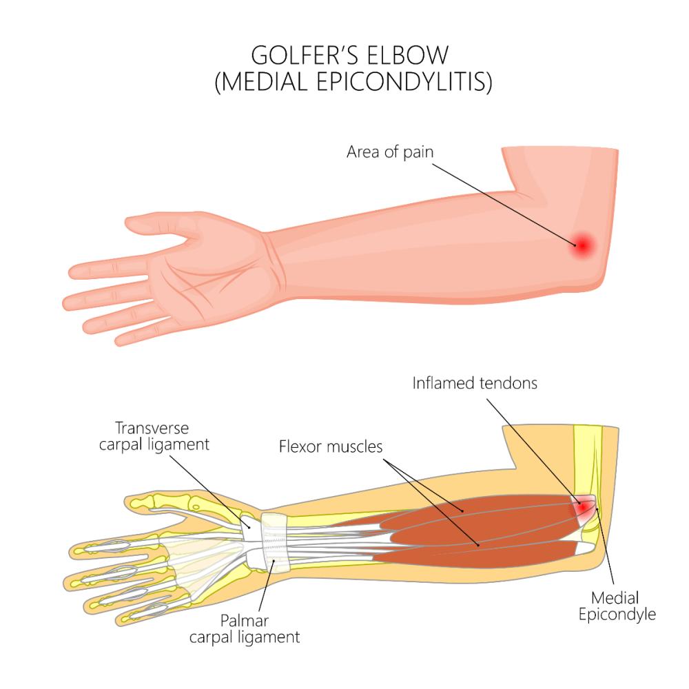 medium resolution of golfer s elbow