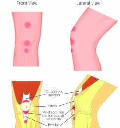 patellar tendonitis [ 923 x 1200 Pixel ]
