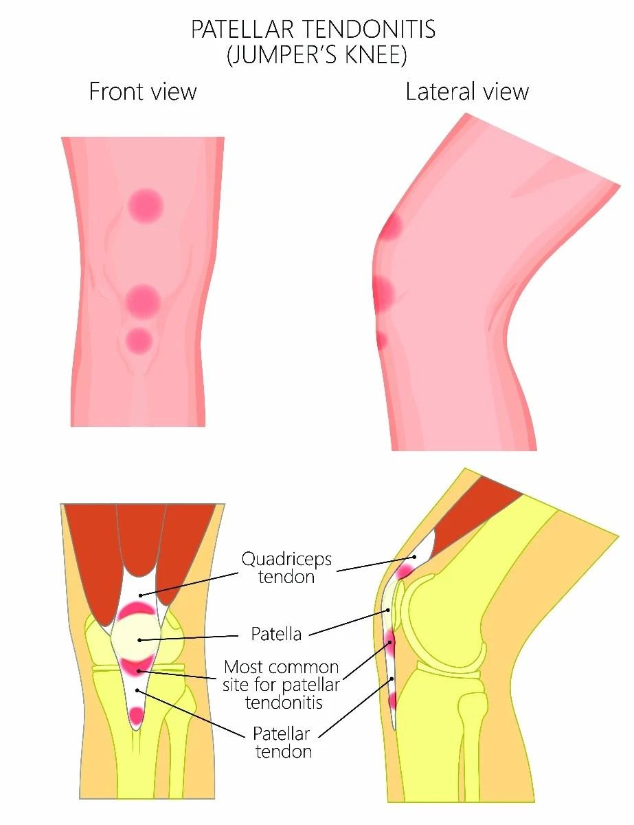 medium resolution of patellar tendonitis
