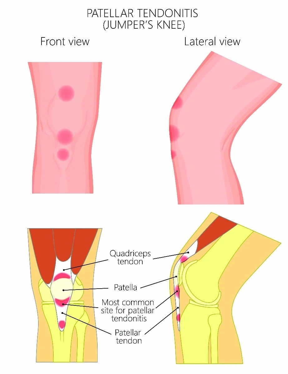 hight resolution of patellar tendonitis