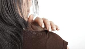 Dandruff and hair loss