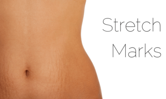 Stretch Marks : Causes and Treatments