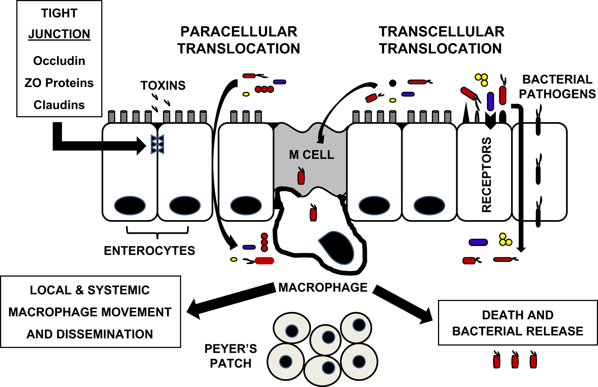 New Concepts of Microbial Translocation in the Neonatal