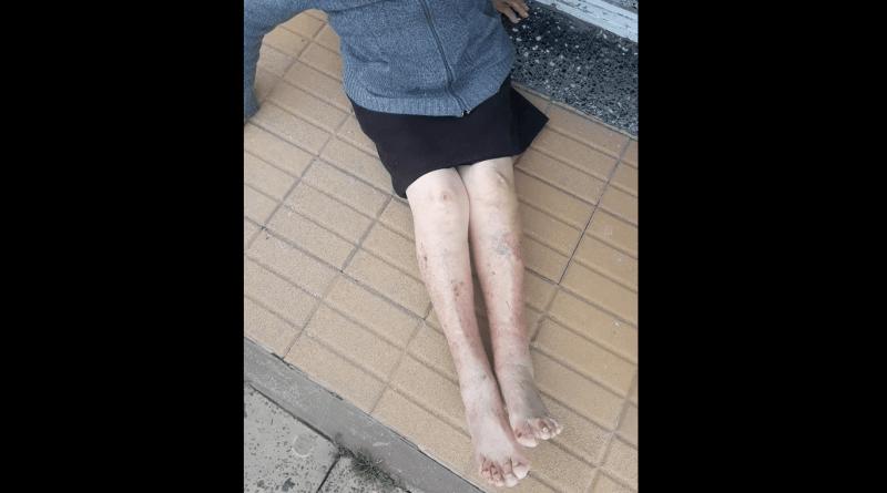 Torturaron y asaltaron a una mujer de 94 años en Berazategui